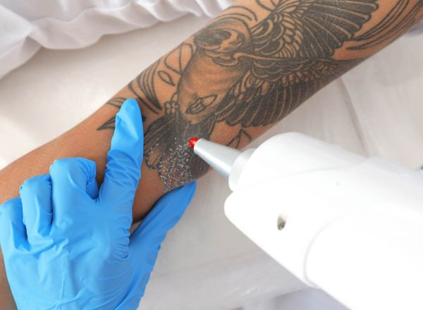 Efficient Methods To Get Completely Rid Of An Old Tattoo
